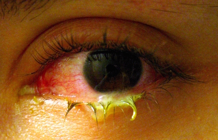 Can contact lenses cause eye infections?
